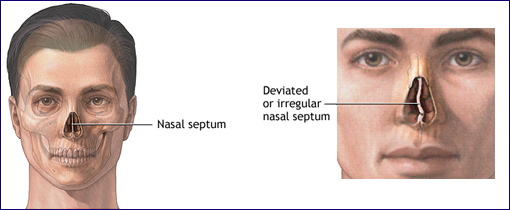 what is a deviated septum